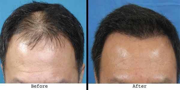 Hair Transplantation comparison