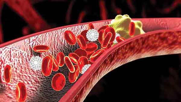 How To Decrease Cholesterol Level In Blood?